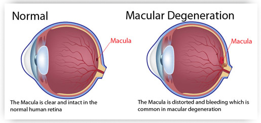 A diagram showcasing Macular Degeneration