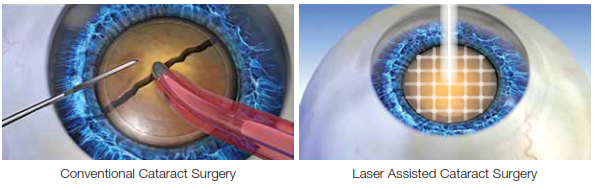 An image showing the difference between conventional and laser cataract surgery